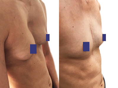 Photo du torse d'une patiente avec correction du Pectus Excavatum