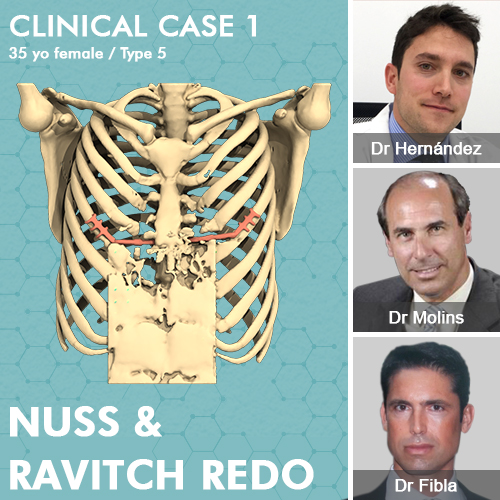Clinical case of successive failure of Ravitch and Nuss redo