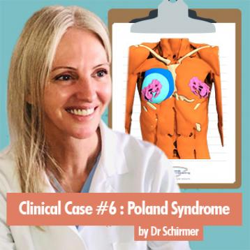 Cas clinique 6 : Traitement d'un syndrome de Poland par le Dr Schirmer