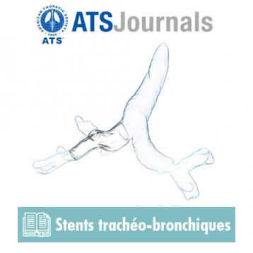 ATS Journal article : Computer-assisted Customized Airway Stent